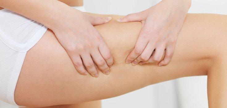 skin_cellulite_women_coconut-oil