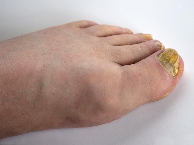 Swollen limbs